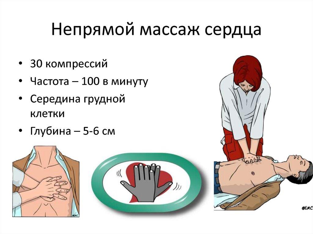 Техника выполнения закрытого массажа сердца